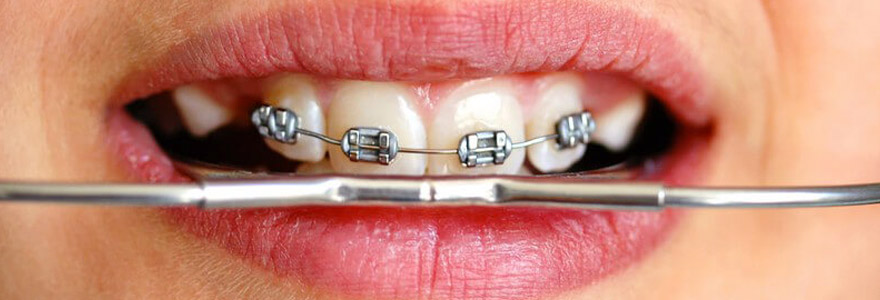 dentiste stomatologue dans le 92