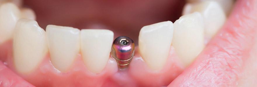 implant dentaire à Paris