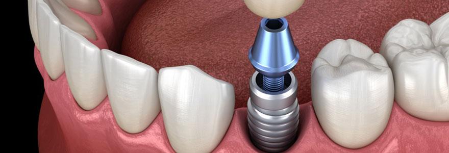 Remboursement d'un implant dentaire